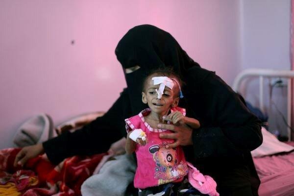 شمارش معکوس برای وقوع یک فاجعه در یمن
